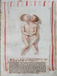 Taufbuch der Pfarrei Böhen Die am 17. September 1808 geborenen und bald darauf wieder verstorbenen siamesischen Zwillinge ABA, Matrikeln Böhen 4, nach 52